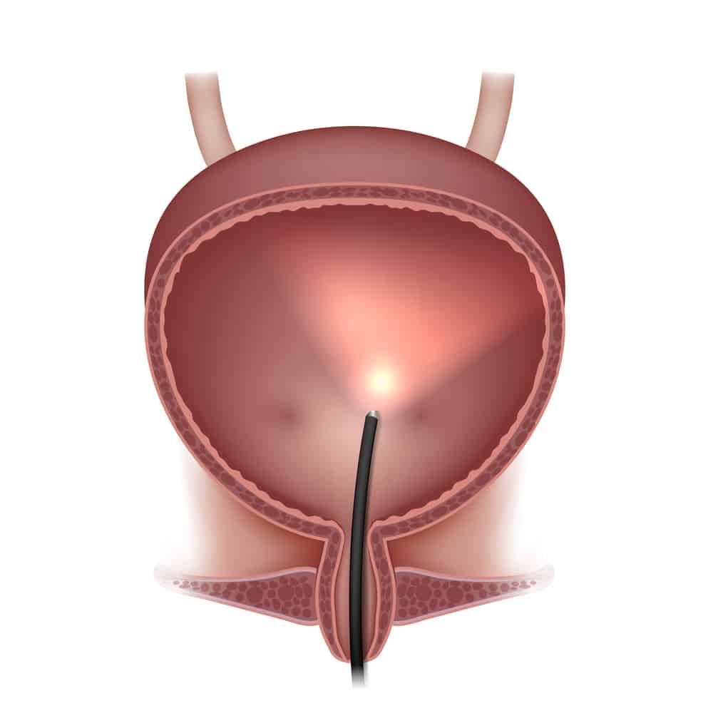 膀胱鏡檢查